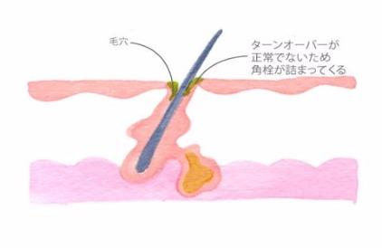 毛穴の仕組み